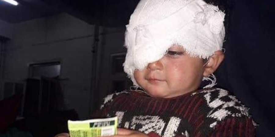 Baby Hiba Pellet injury
