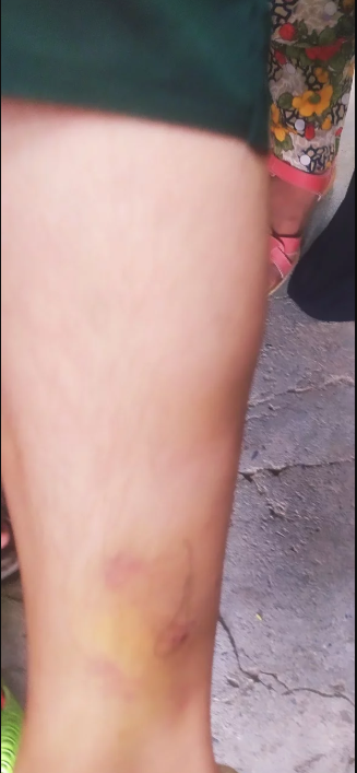 Shabnam, one of the victims of police brutality, shows her bruised leg.Kashmir