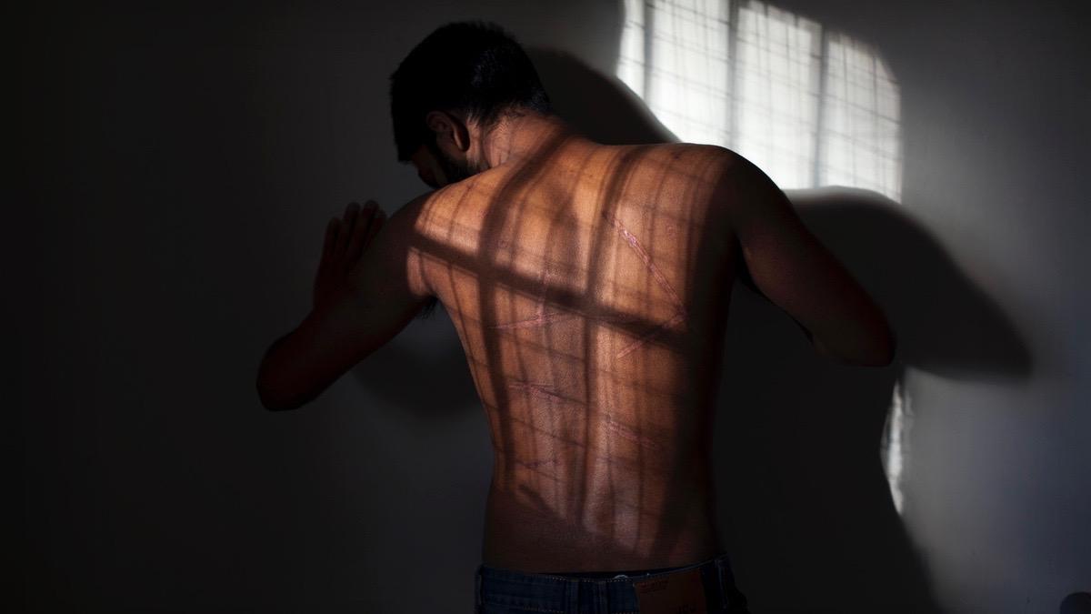 Sri Lanka Tamils tortured